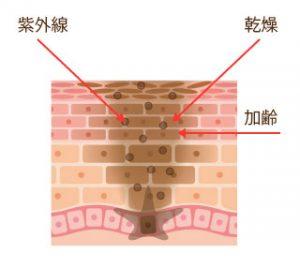 メラニン排泄の遅れはターンオーバーの遅れが原因